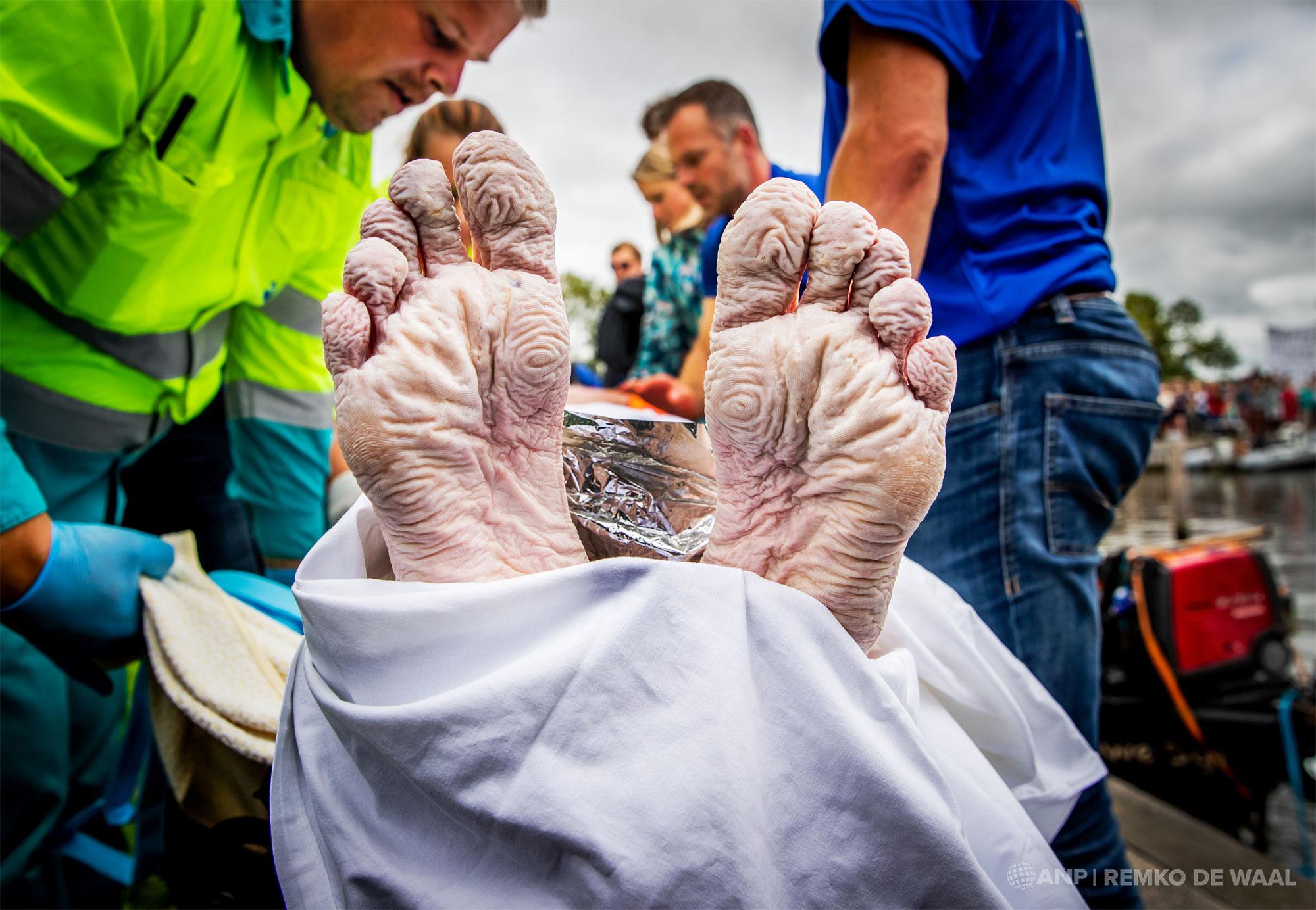 De voeten van Maarten van der Weijden na het staken van zijn 11stedenzwemtocht in Birdaard.