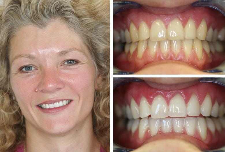 teeth whitening zoom example.jpg