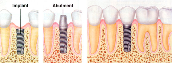 dental implant 2.jpg