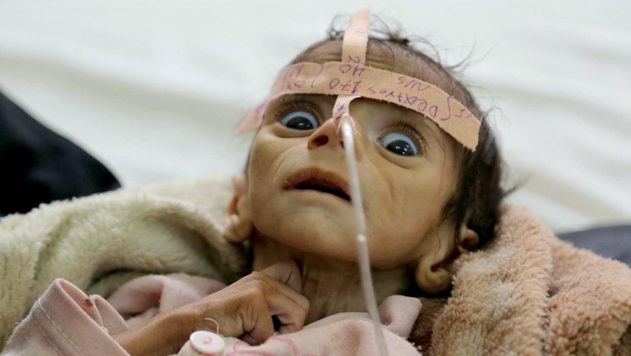 starving-baby-yemen.jpg