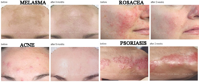 PICTURES ABOVE ARE AFTER A SET OF CHEMICAL PEELS ALT TEXT