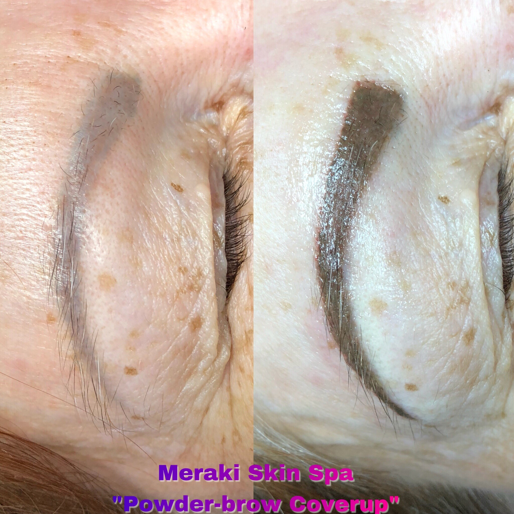 meridian Idaho permanent makeup coverup alt text