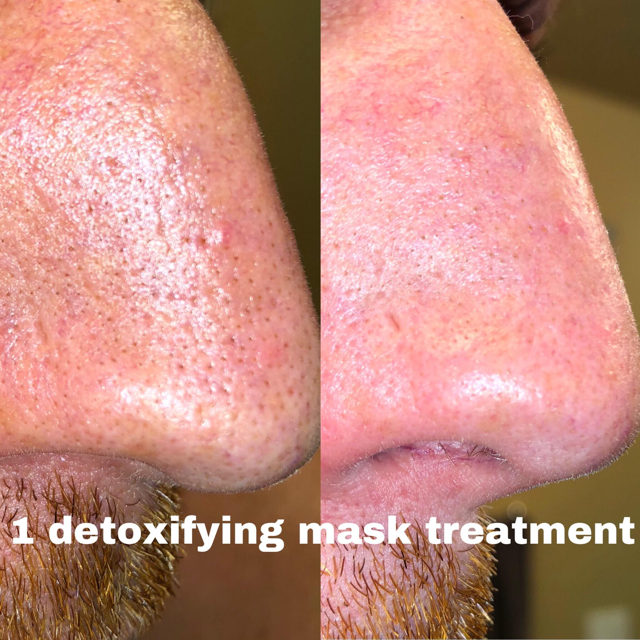 detox facial treatment alt text