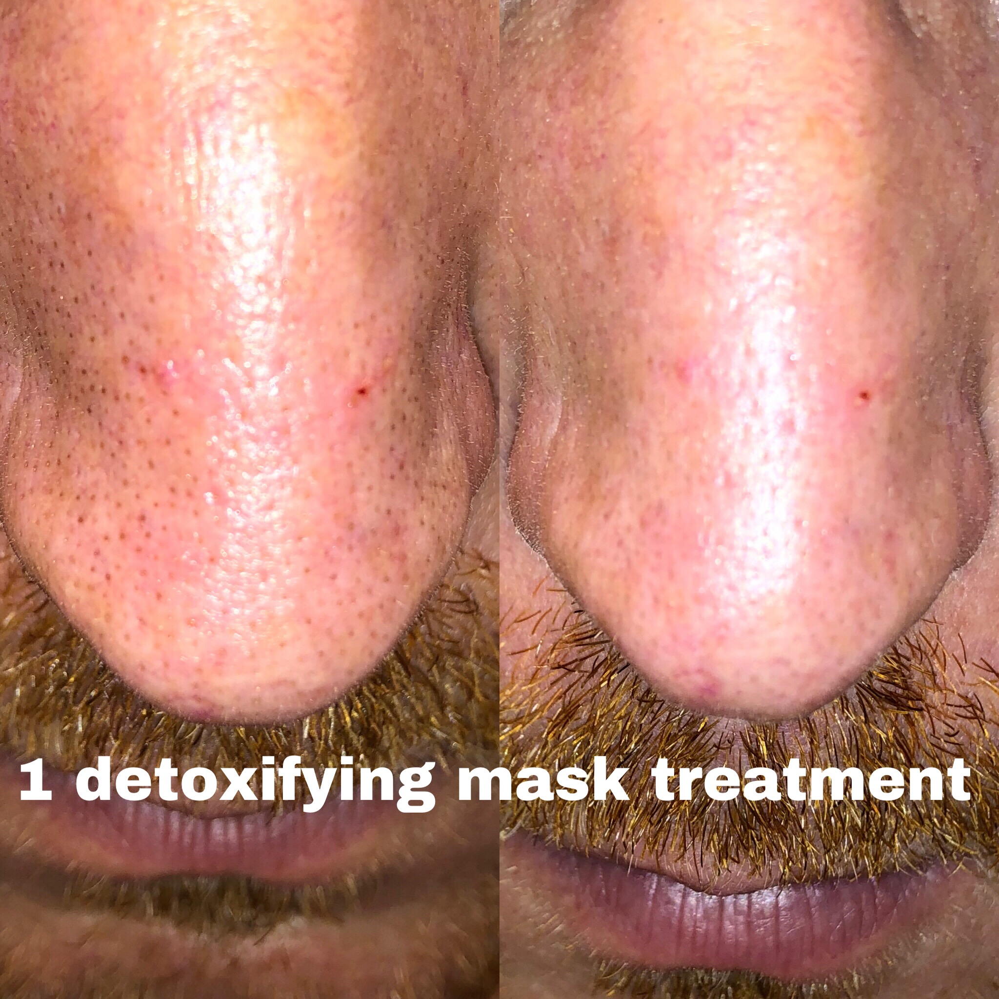 detox facial treatment-acne treatment alt text