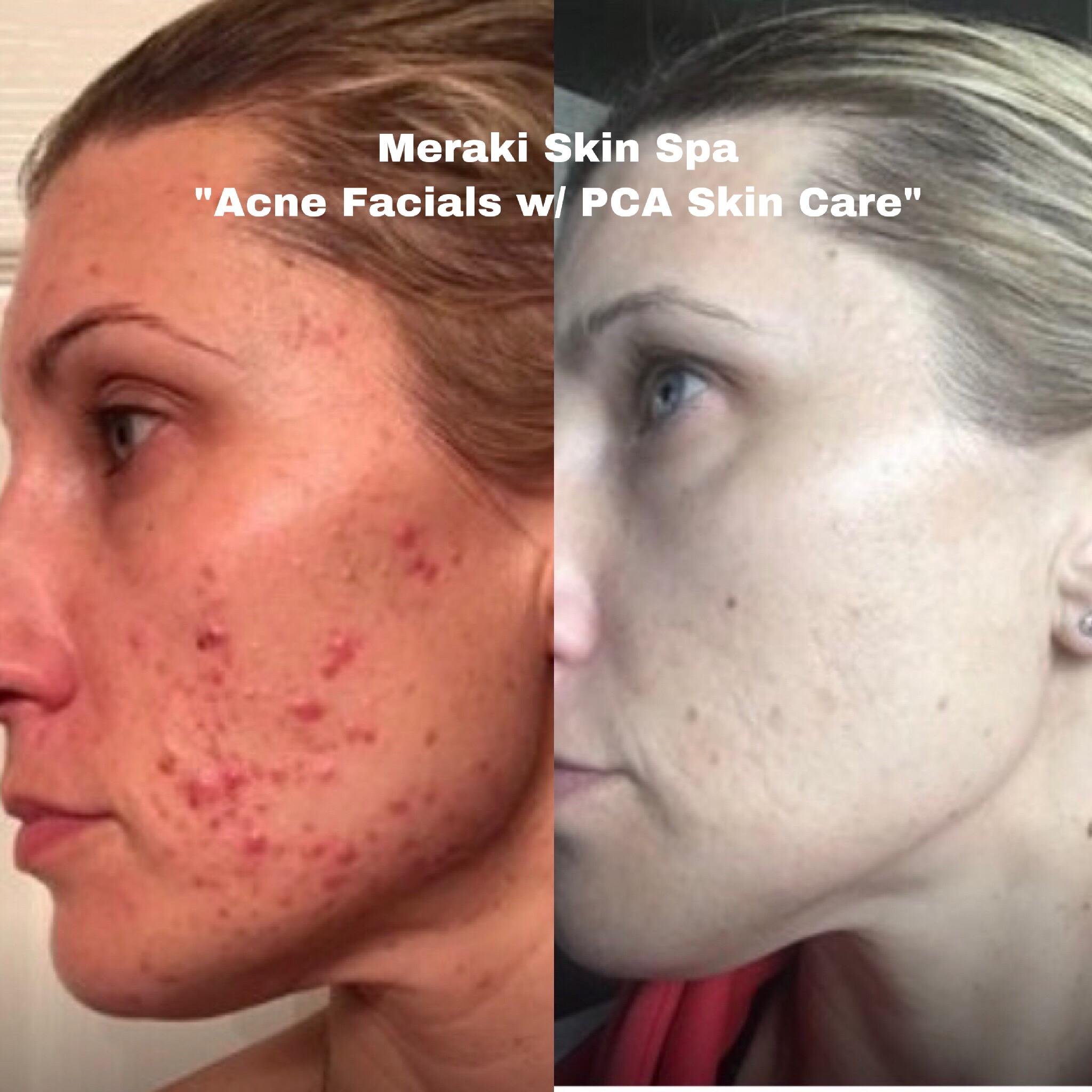 alt text lauren acne facial treatment