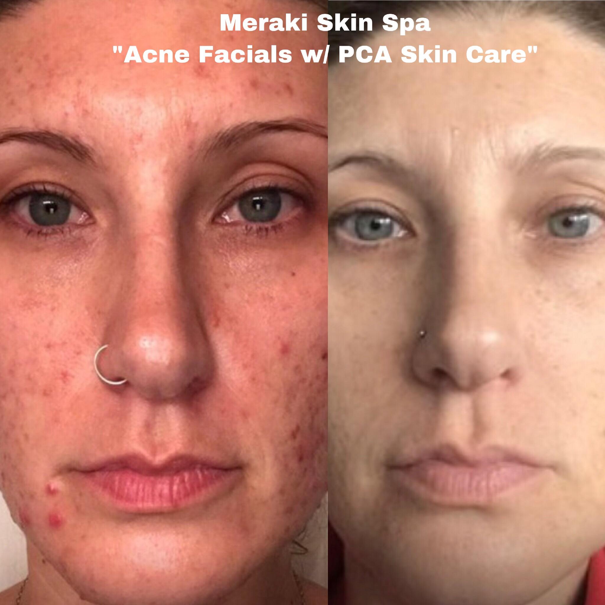 alt text Lauren acne facial treatment 2