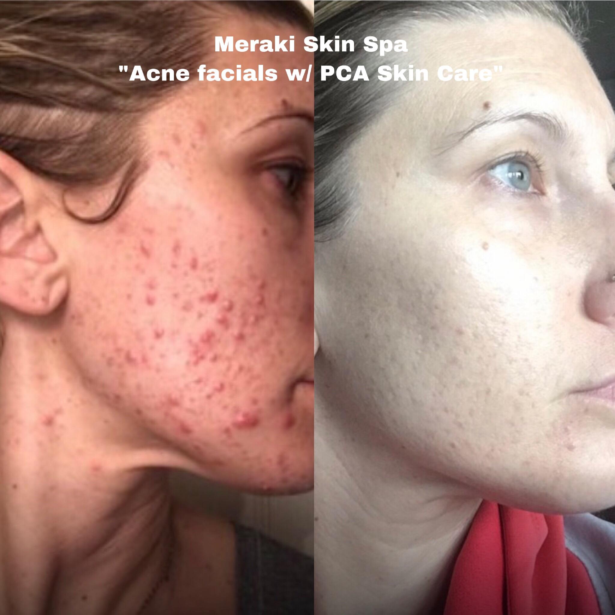 Alt text Lauren Acne facial treatment 3