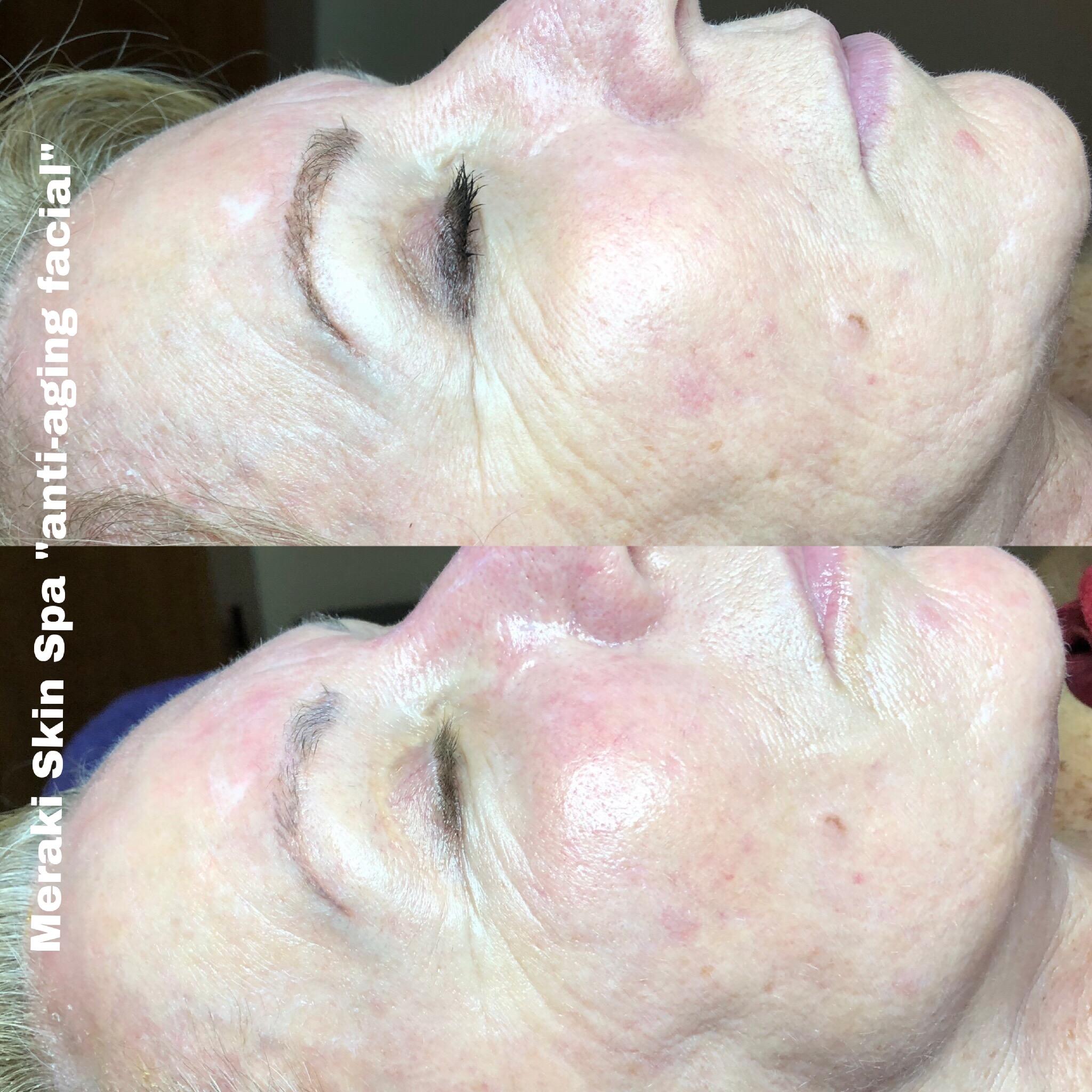 alt text anti-aging facial treatment 1