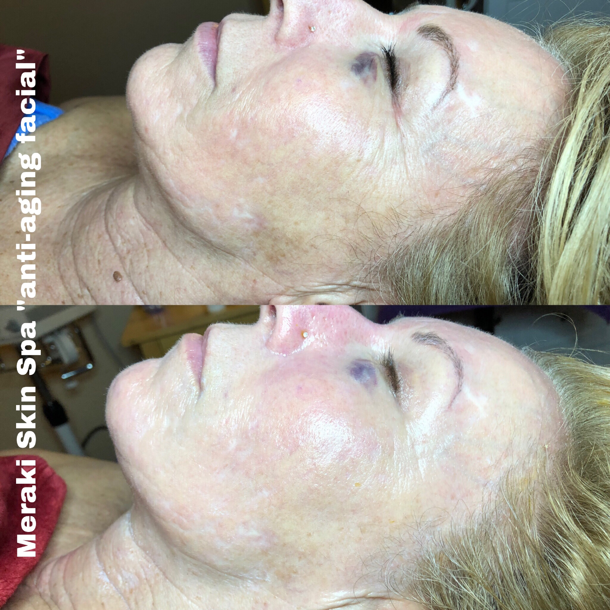 alt text anti aging facial wrinkle treatment 2