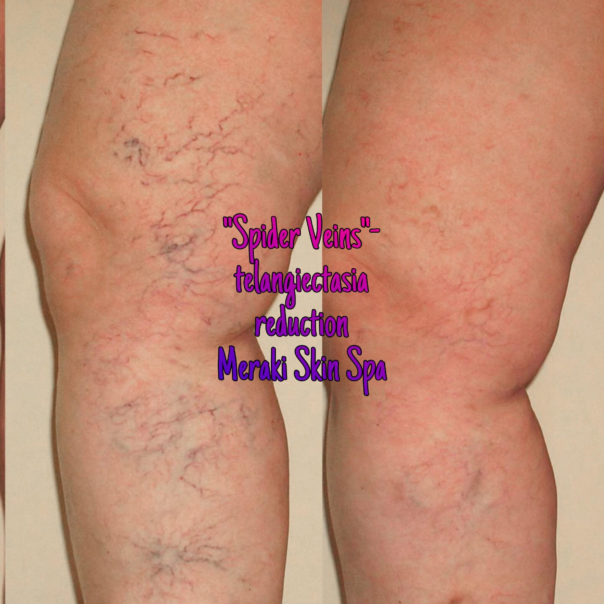 alt text spider vein treatment, spider vein reduction