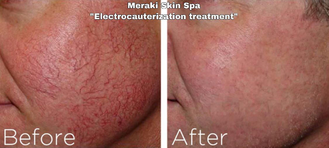 alt text electrocauterization telangiectasia treatment