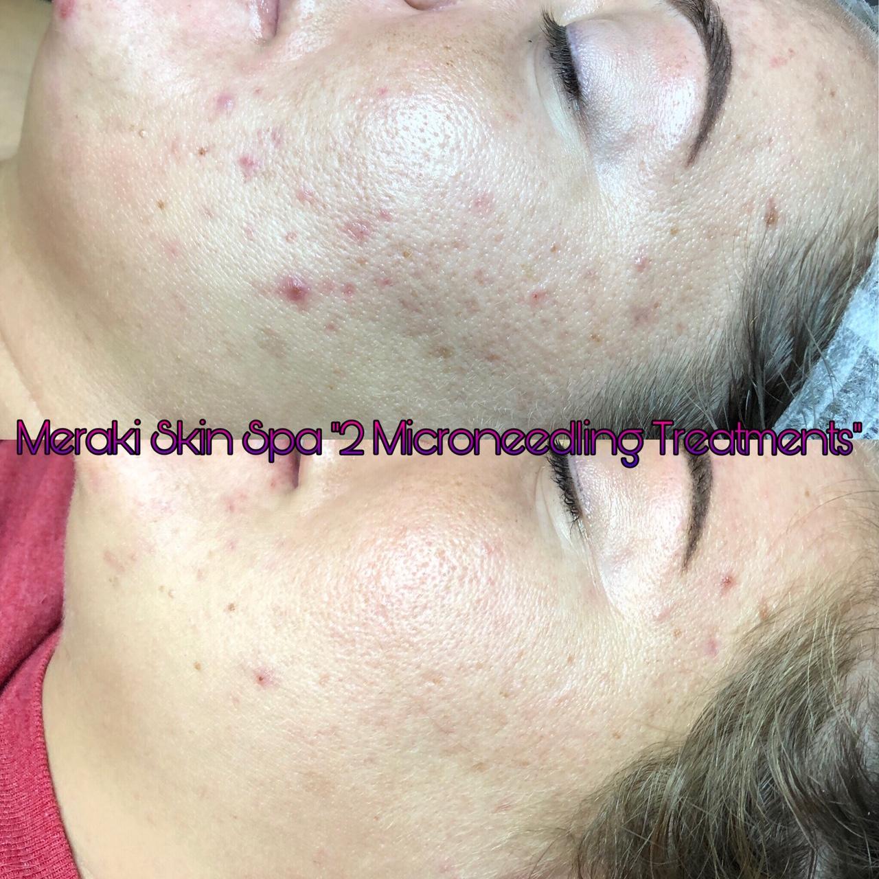 alt text microneedling acne anti aging treatment