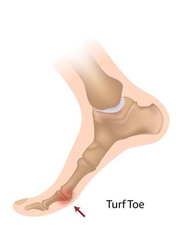 16911809_S_Turf Toe_Feet Bones.jpg