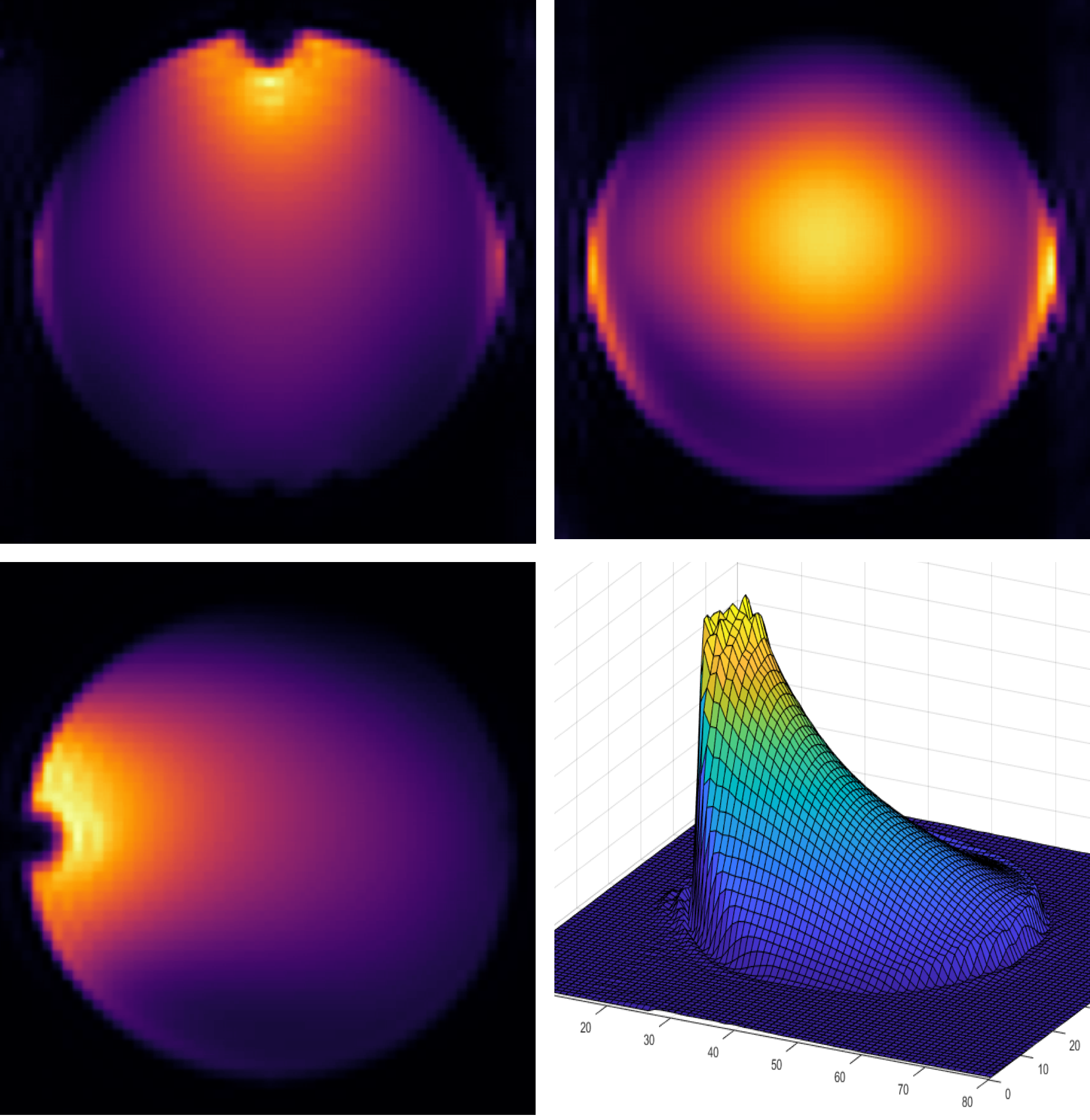 Construction of a Basic Radio Frequency Coil - We built a radio frequency receiver coil to acquire an image of a spherical phantom. February 1. Left: The resulting phantom images in the coronal,sagittal, and transverse plane from a 3D gradient echo sequence on the Phillips 7T. Right: The finished coil situated on top of the spherical phantom consisting of H2O, CuSO4 and NaCl.Team: C Hill, E Bluemke