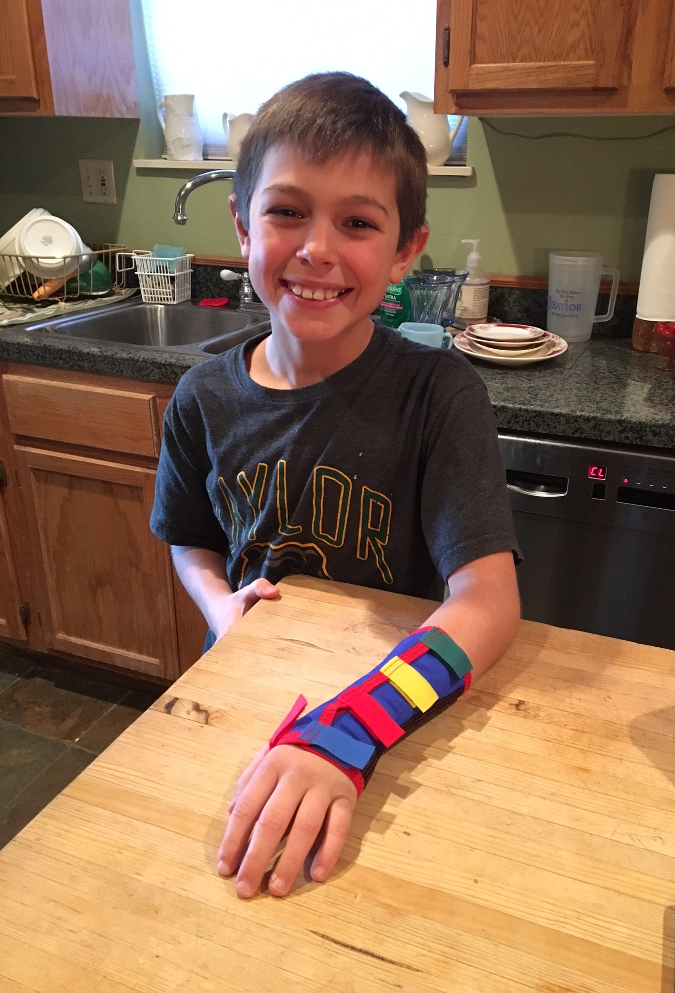 my son showing his cast