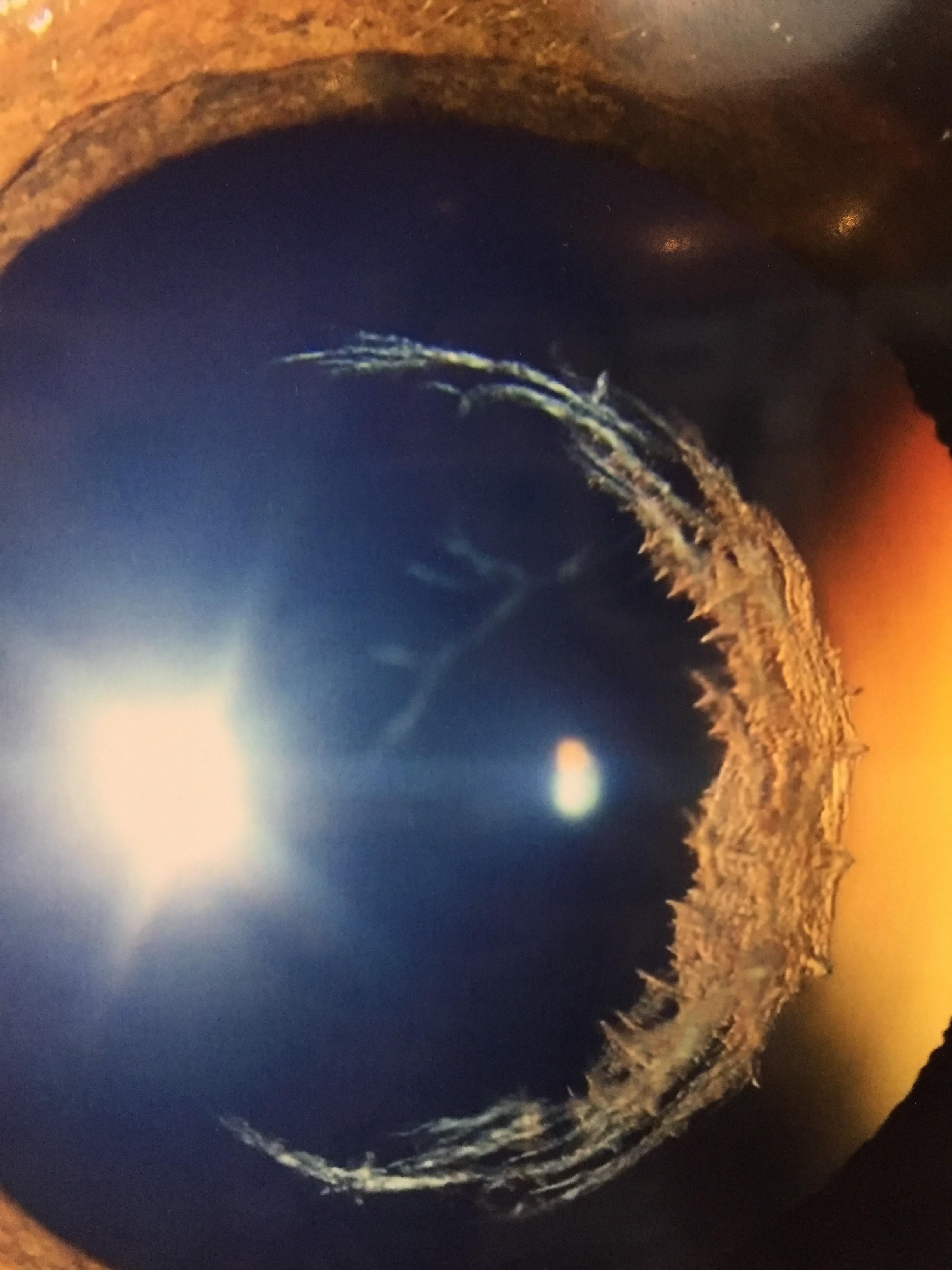 """Anterior Segment winner: Cherlene Delgado, """"Celestial Eye"""""""