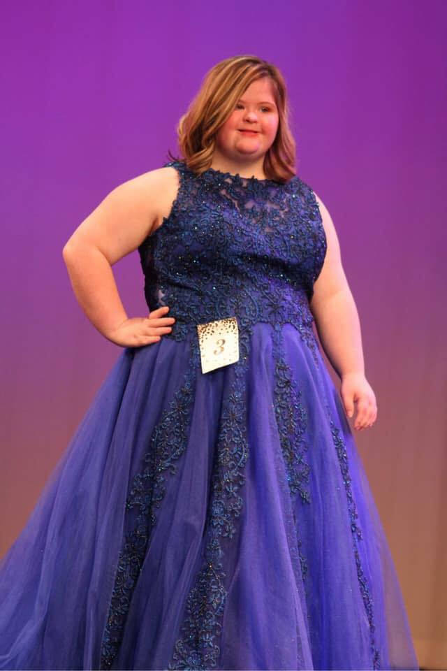 Mississippi Miss Amazing Teen  |  Morgan Tibbens   Click here to read more about Morgan!