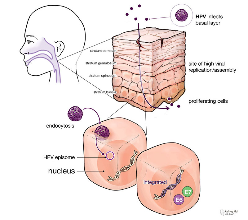 """Figure caption: """"Site of oropharyngeal cancer and HPV infection of the mucosal membrane: When there is a microabrasion or tear in the outer membrane, HPV virion can enter the mucosa and infect the proliferating cells in the basal layer. The virus enters the cell by endocytosis, and the genome can remain as an episome in the cytoplasm or enter the nucleus and integrate with the cellular DNA. When integrated, the oncoproteins, E6 and E7, can be expressed at stratum spinosum or stratum granulosum, where high viral replication occurs."""""""