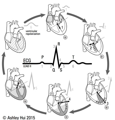 Chapter: CARDIOLOGY Figure caption: Learning to read an ECG from P wave to T wave and understanding vectors based on Lead II.