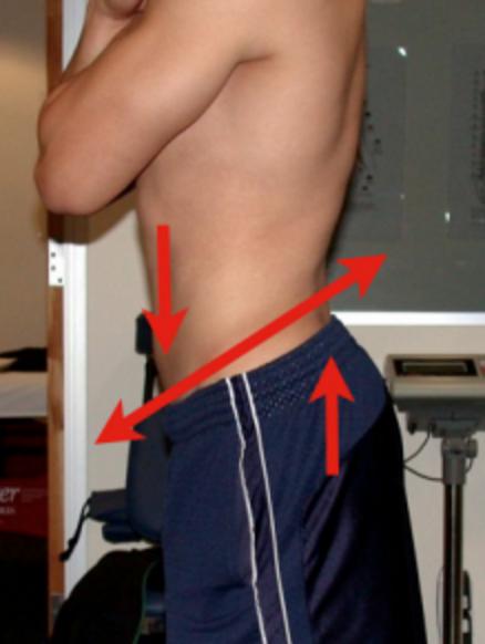 Lumbar Extension in Standing