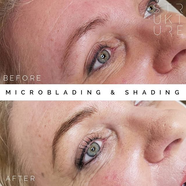 "Ok.. let's try that again! Thank you to those who let me know I accidentally uploaded a version where the photos were swapped 🥴 is now a good time to let you all know I'm about to take a weeklong vacation? I clearly need it! ... Microblading & shading to give her a ""your brows, but better"" upgrade :) We also bumped up her lower lashline to make her eyes pop 💕 ... Procedure: Microblading & shading Machines/Needles: @microbeauofficial #bellar & #vertix needles, @everlastingbrows microbeads & handles Pigment: @tinadaviesprofessional i♥️ink Medium Brown"