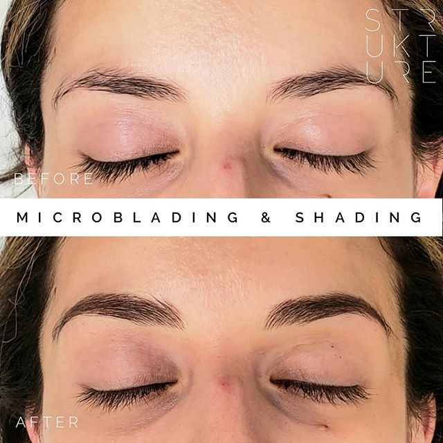 Missing an arch? No problem :) what beautiful brows to start with! Microblading & shading to fill in missing hair and give the illusion of a light powder. No more brow makeup for this beauty 💕