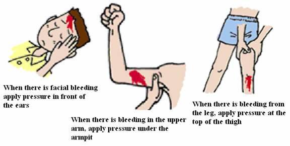 pressure-immobilization.jpg