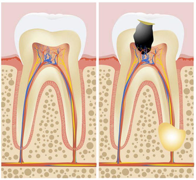 Gesunder Zahn; Rechts: Tief kariöser Zahn mit Beteiligung des Zahnnervs