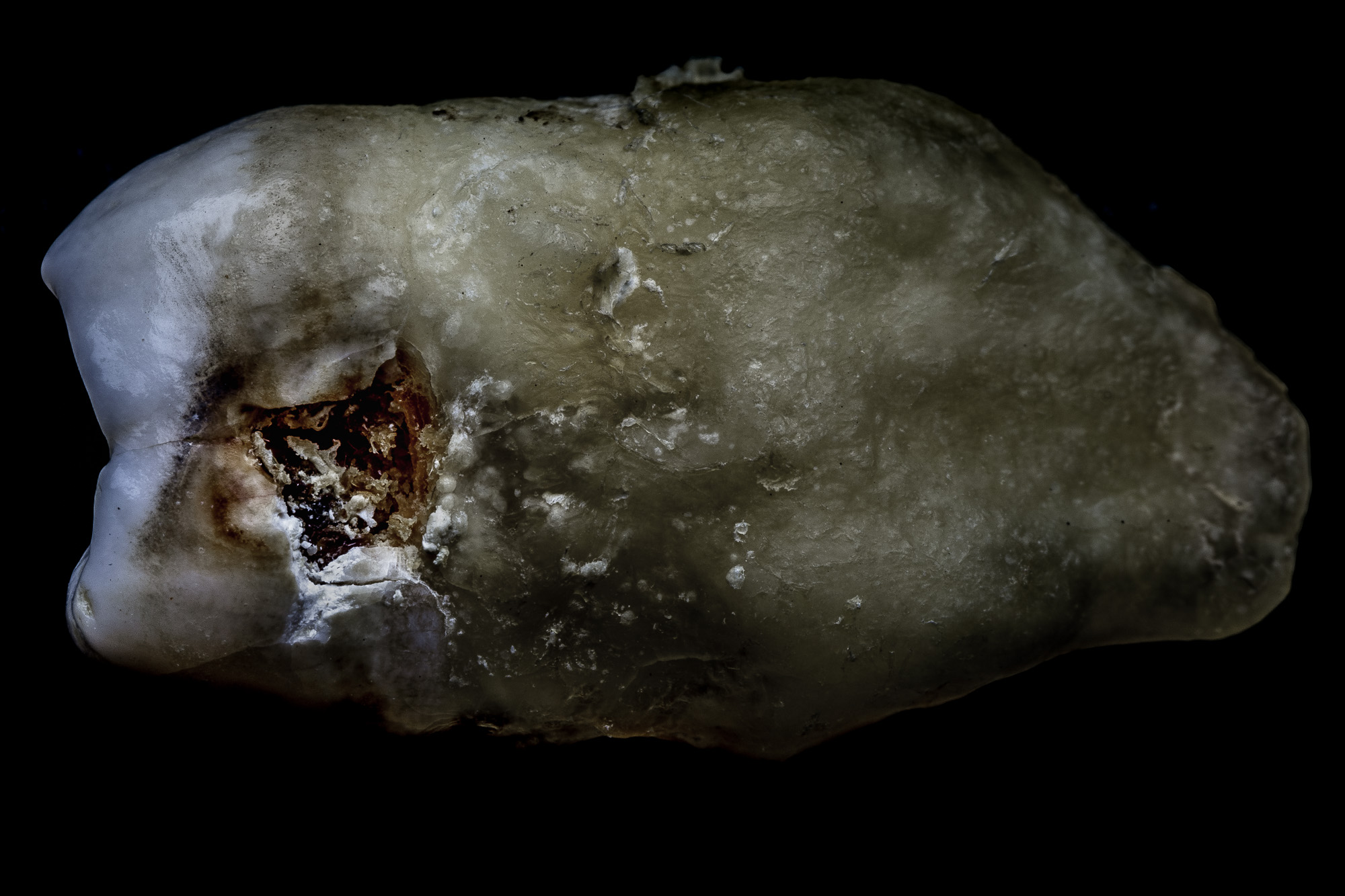 neal-auch-human-teeth-photographs-1.jpg