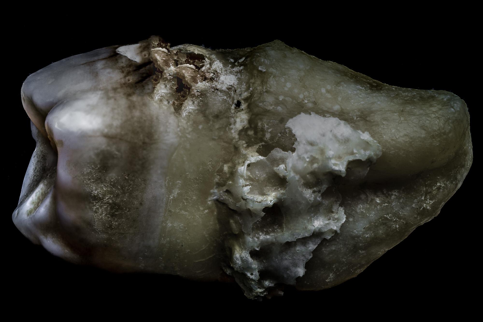 neal-auch-human-teeth-photographs-2.jpg