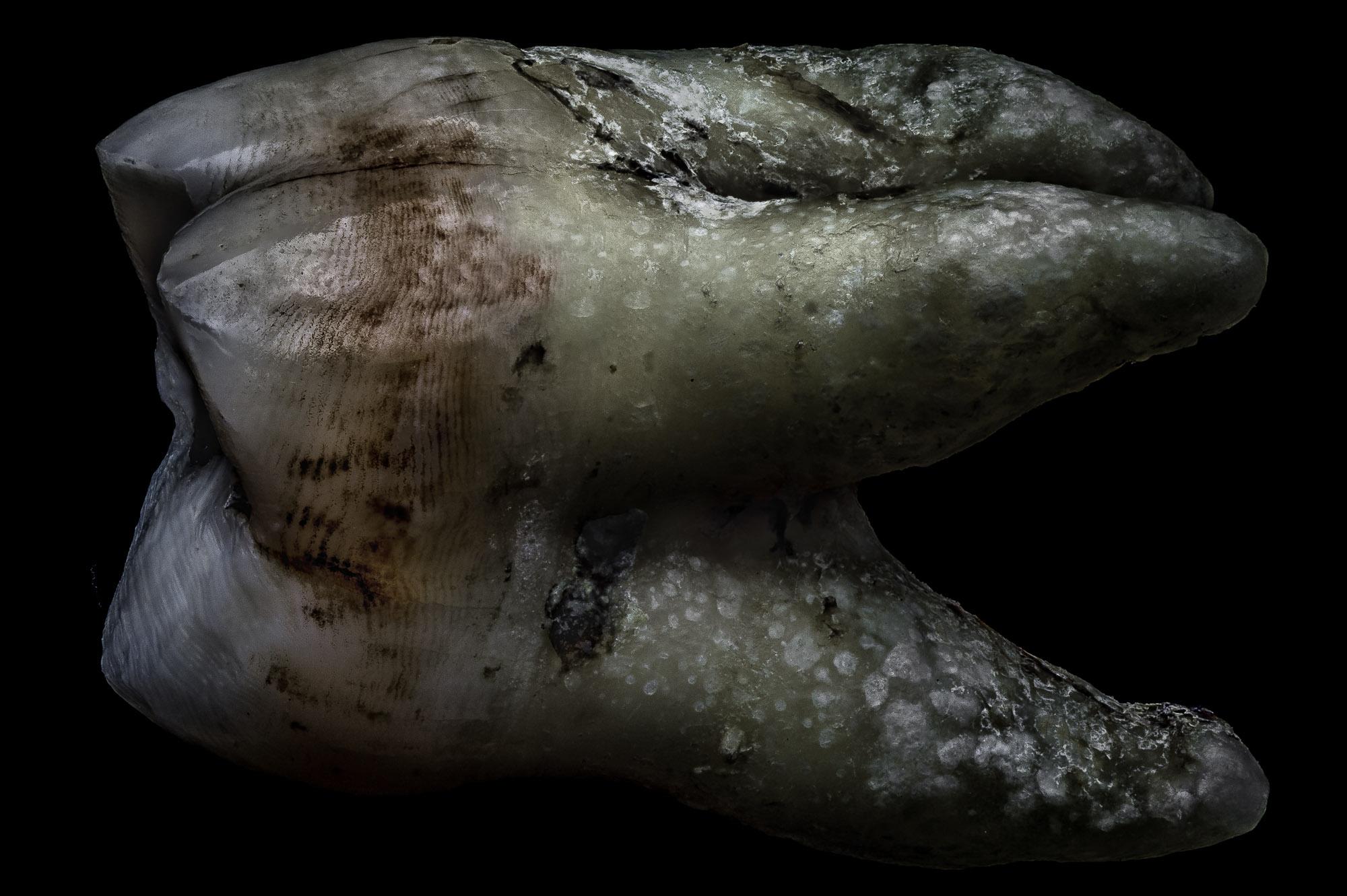 neal-auch-human-teeth-photographs-3.jpg