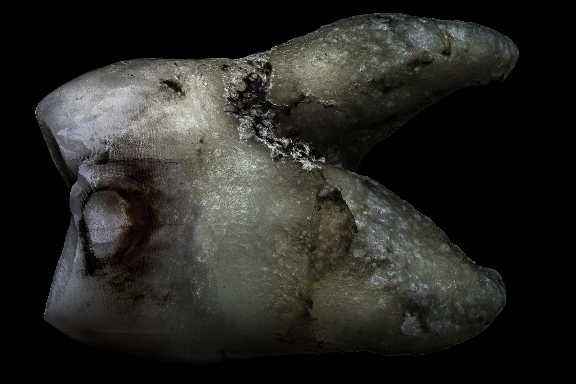neal-auch-human-teeth-photographs-4.jpg