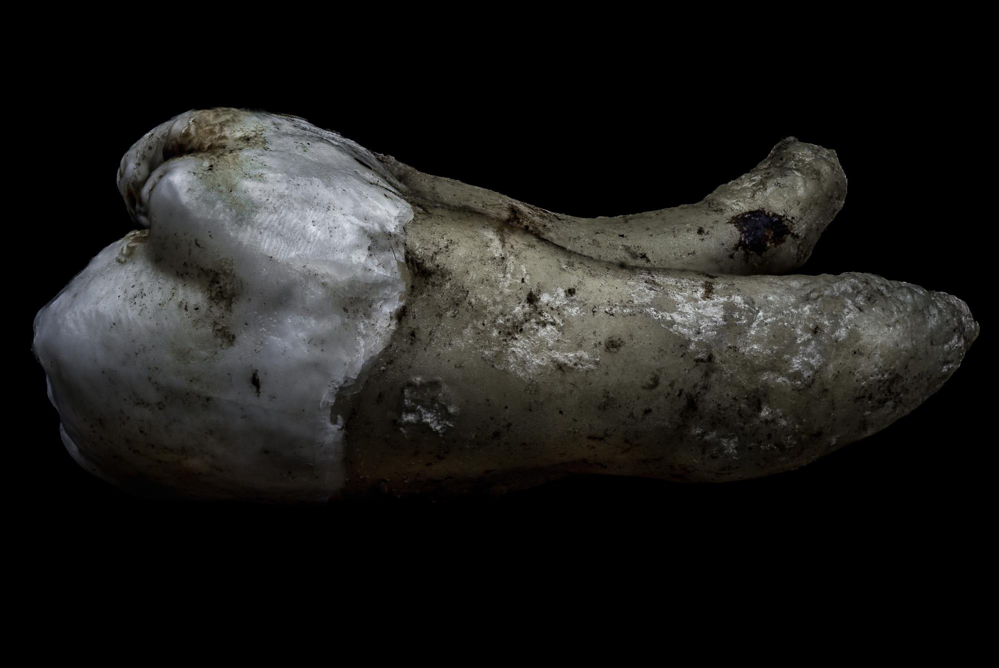 neal-auch-human-teeth-photographs-8.jpg