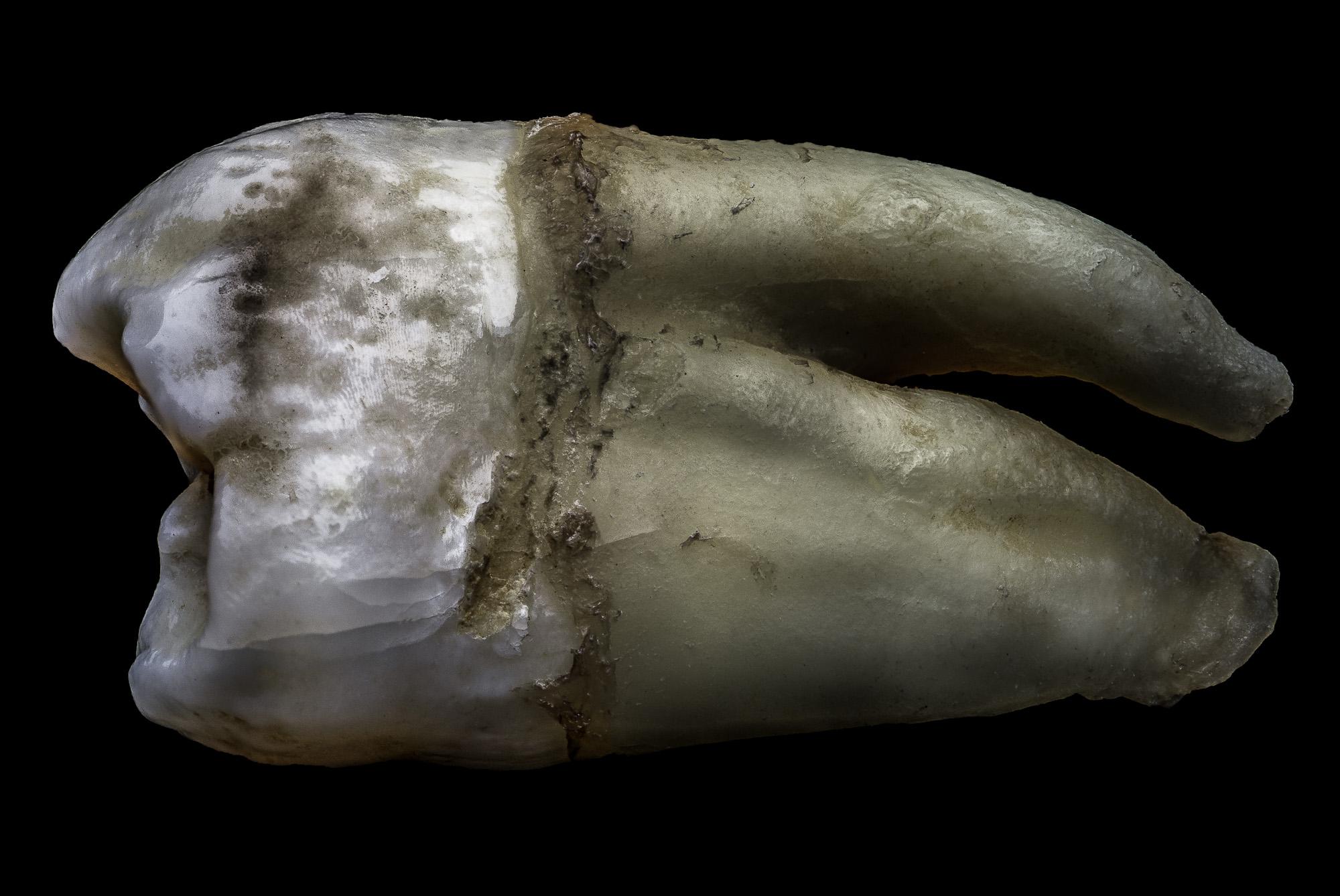 neal-auch-human-teeth-Nov-2018-4.jpg