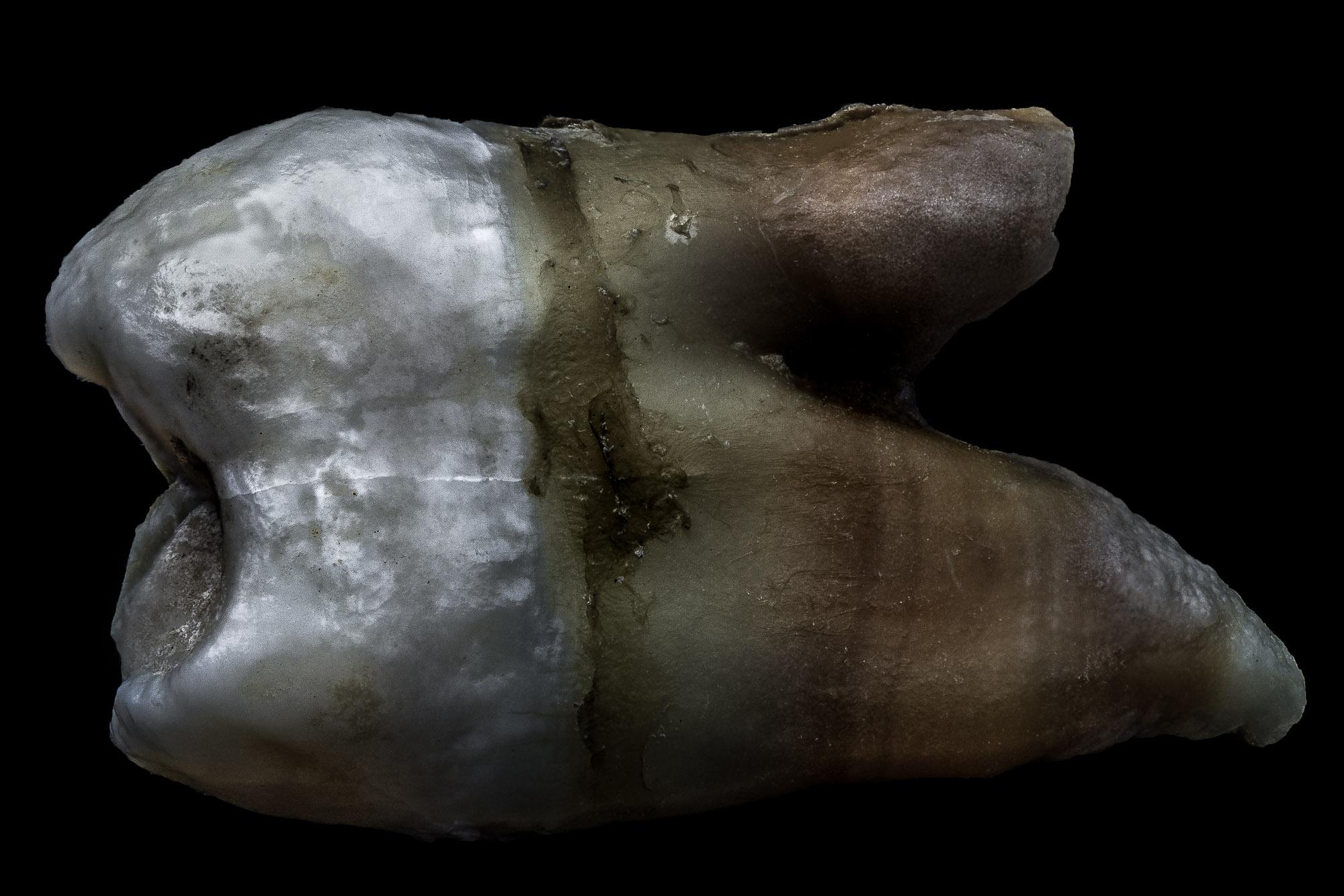neal-auch-human-teeth-Nov-2018.jpg
