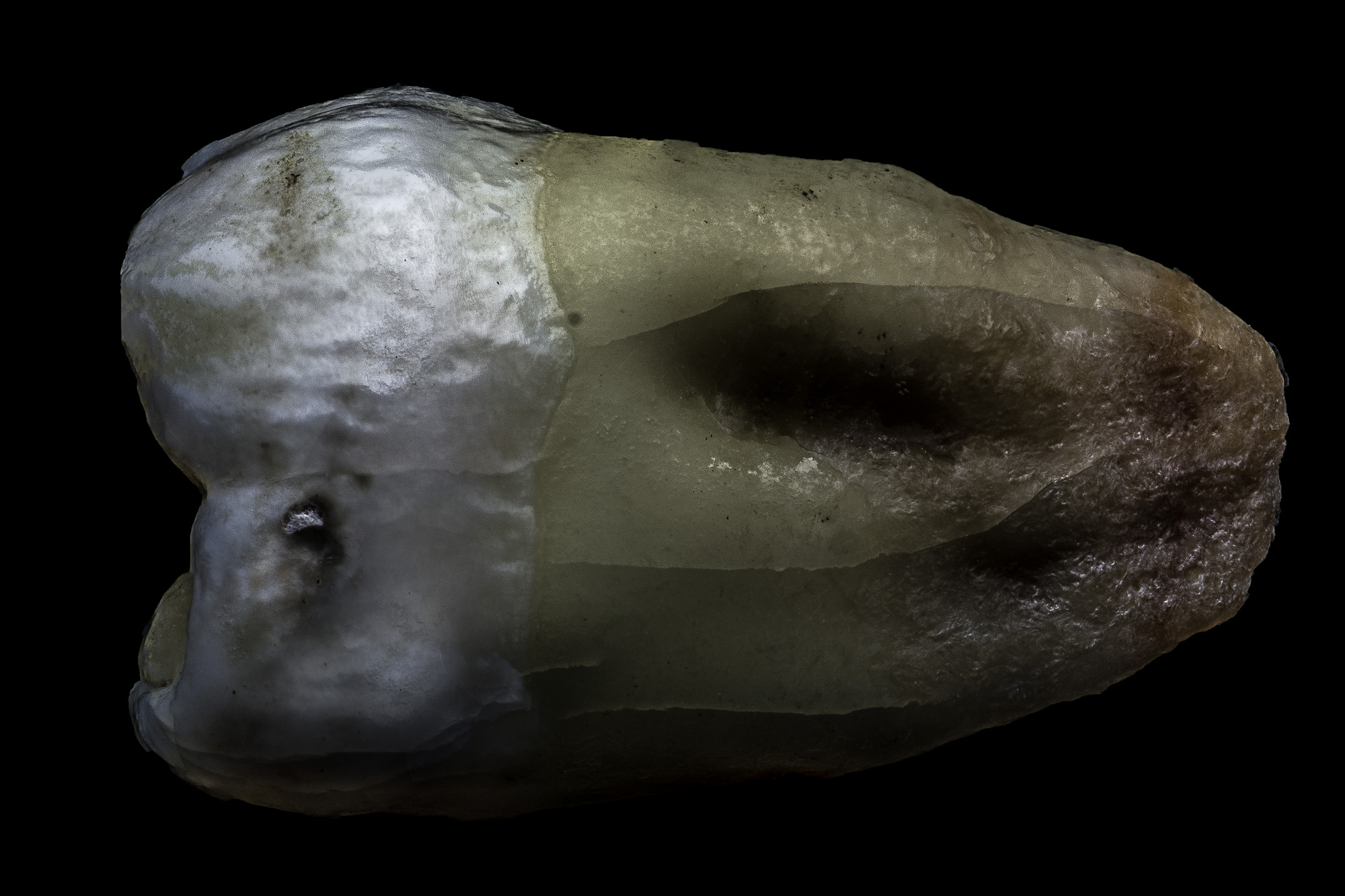 neal-auch-human-teeth-Nov-2018-6.jpg