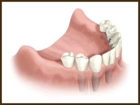Multiple Implants - When several teeth are missing, implants can be used to reconstruct the missing teeth with multiple Implants