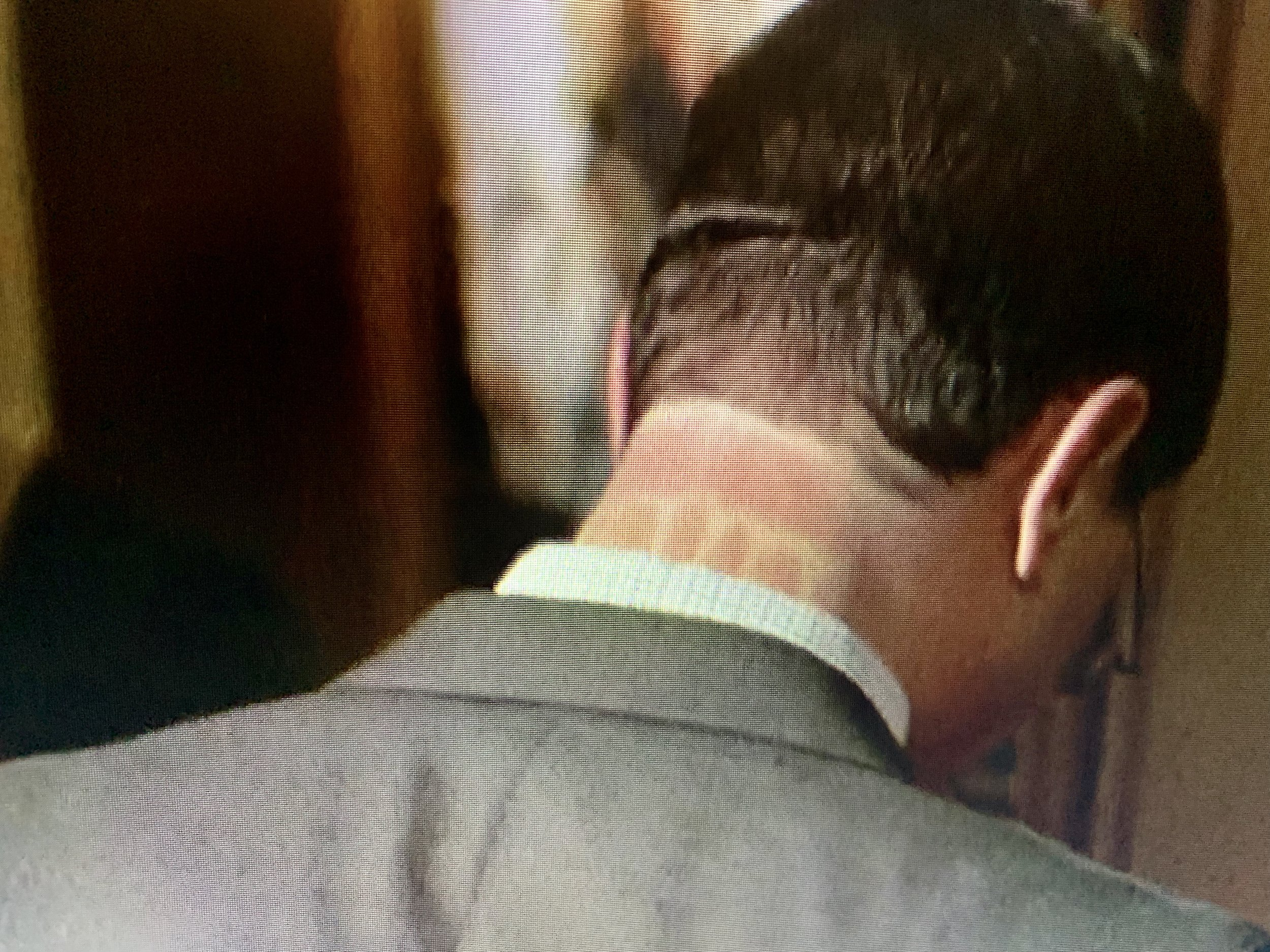 Josh's inexplicable neck markings
