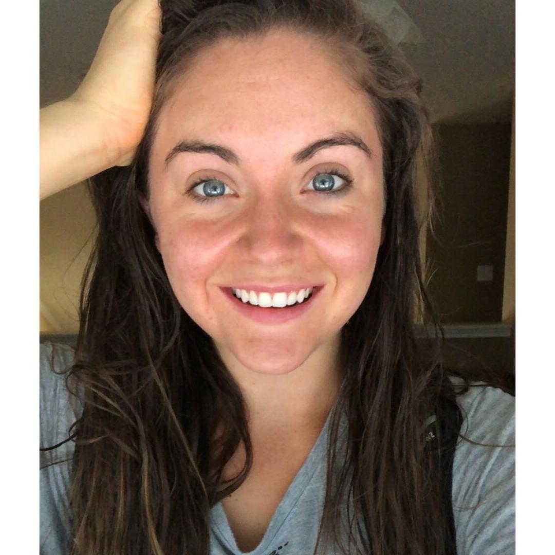 Holistic-skin-care-pcos-acne