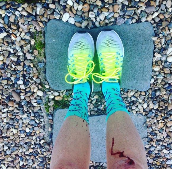 Grazed Knees Runner