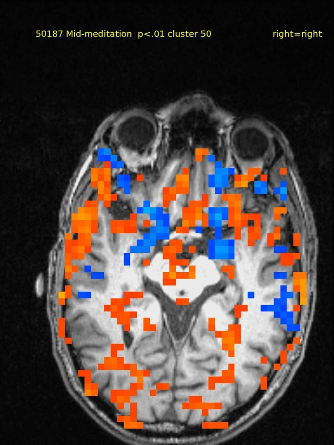 61yo male, TM meditator since 1970. Activations in ventral medial prefrontal, but also widespread.  Deactivations in bilateral thalamus.