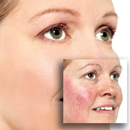 rosacea-before-after.jpg