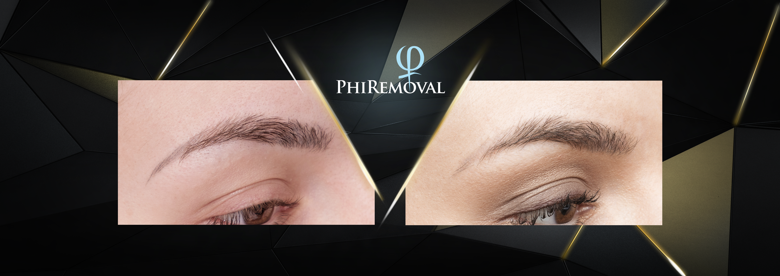 PHIREMOVAL-Before-After-1.png