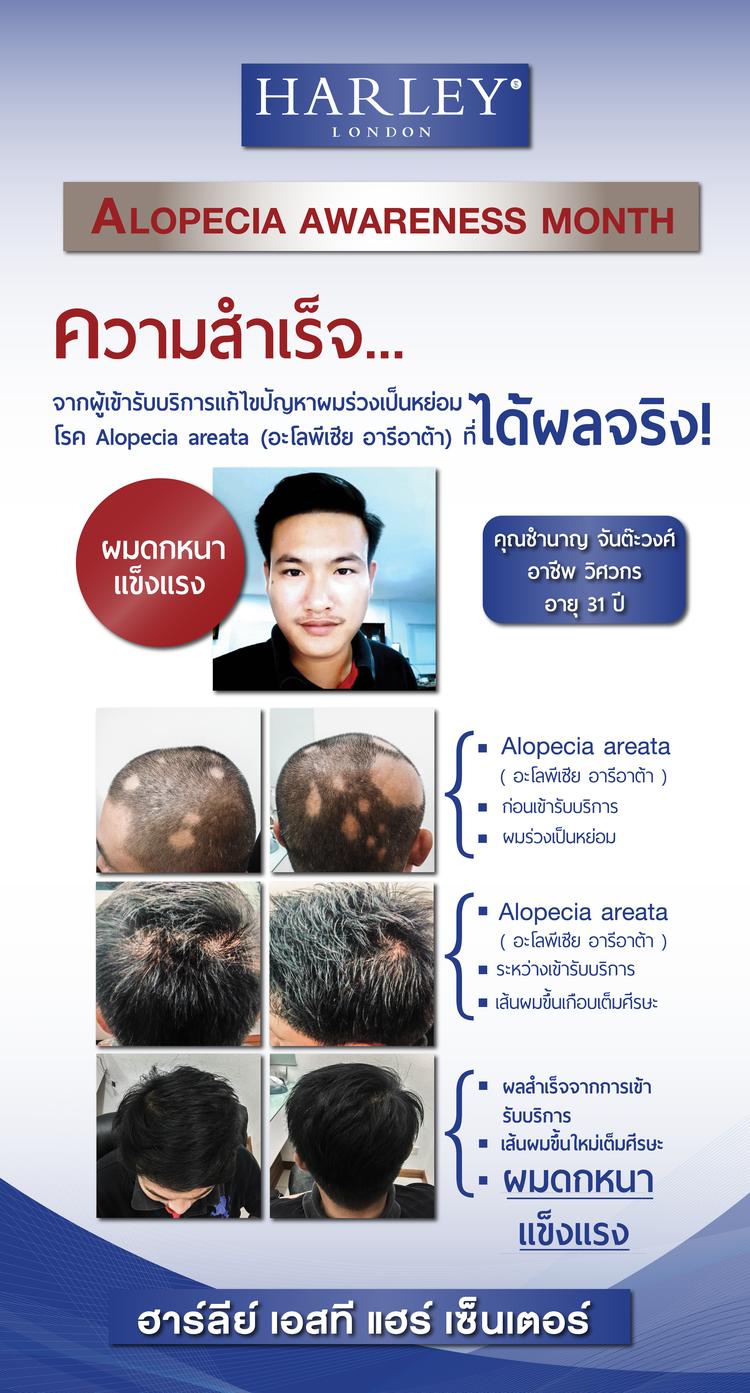 *ผู้ใช้ริการจริงที่เคยมีอาการผมร่วงเป็นหย่อมๆ จากโรคอะโลพีเชีย อารีอาต้า (Alopecia areata)