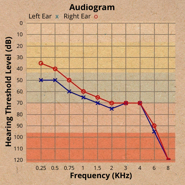 An audiogram showing severe loss of hearing in both the left and right ears