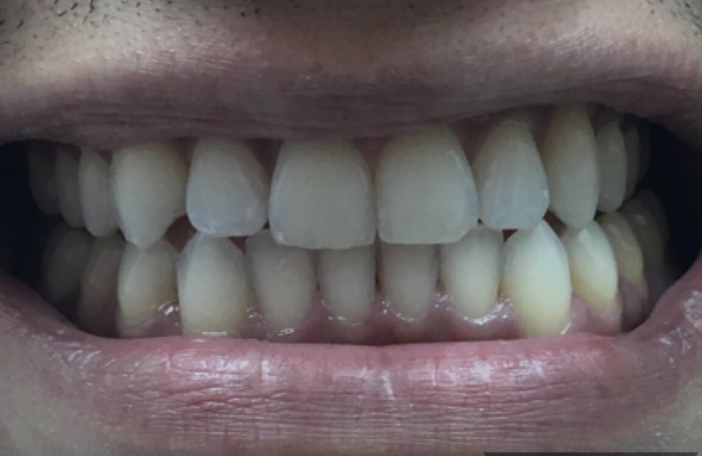 After Invisalign - 6 Month Case
