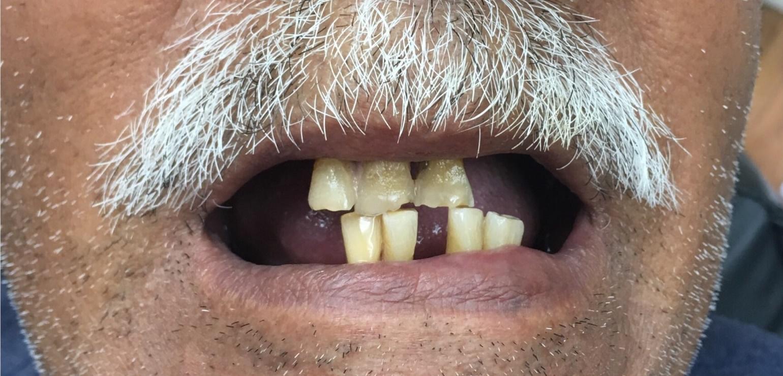 Missing & Decayed Teeth