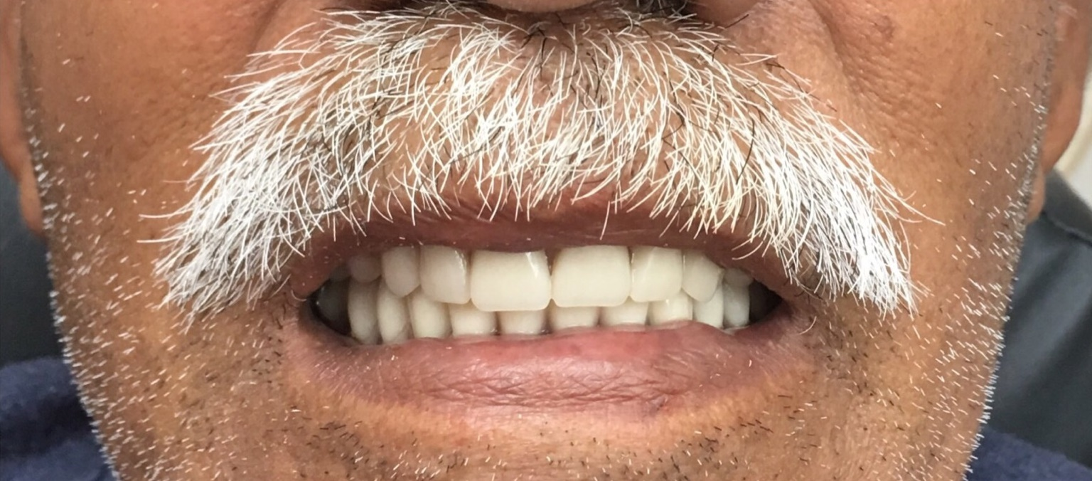 Complete Upper & Lower Dentures