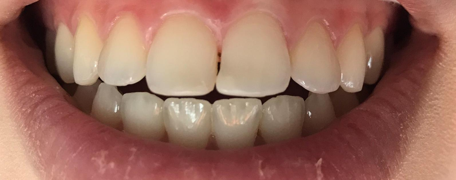 Misshaped Composite Tooth