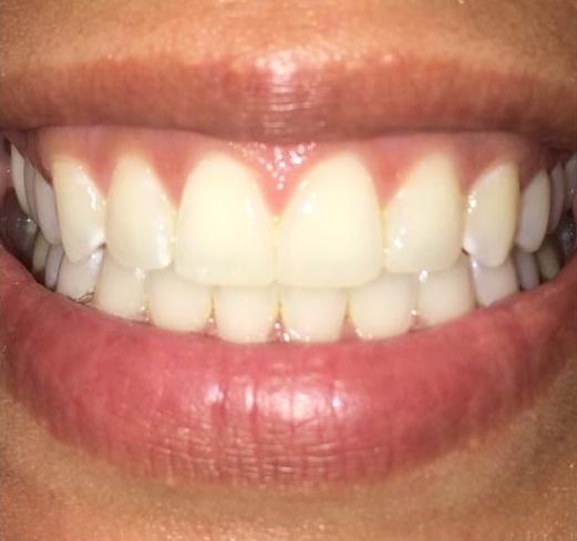 Before {KOR} Teeth Whitening